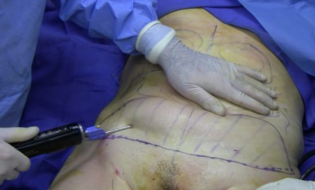 Undergoing liposuction procedure